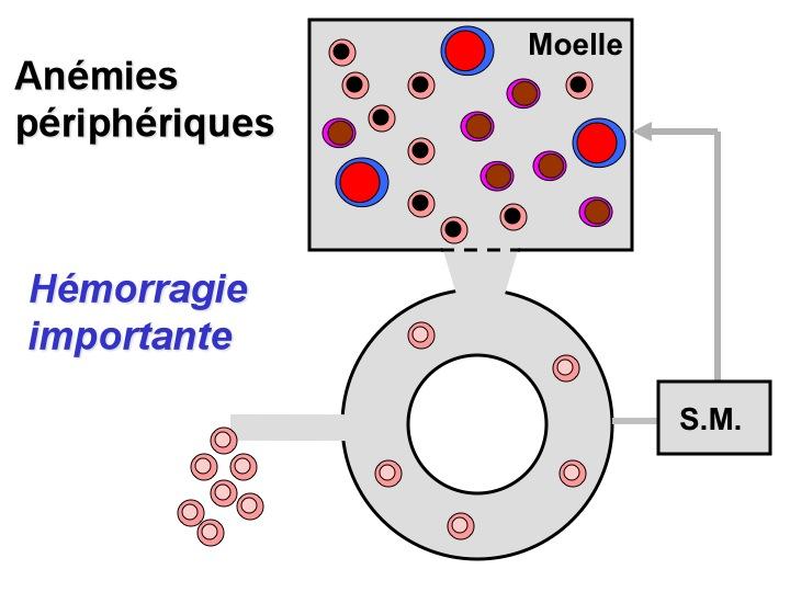 anemie d origine peripherique)