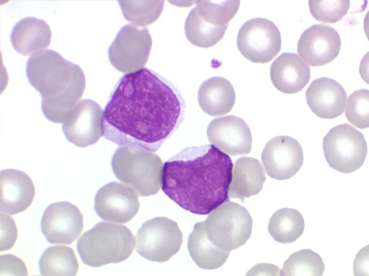syndrome lymphoprolifératif chronique b